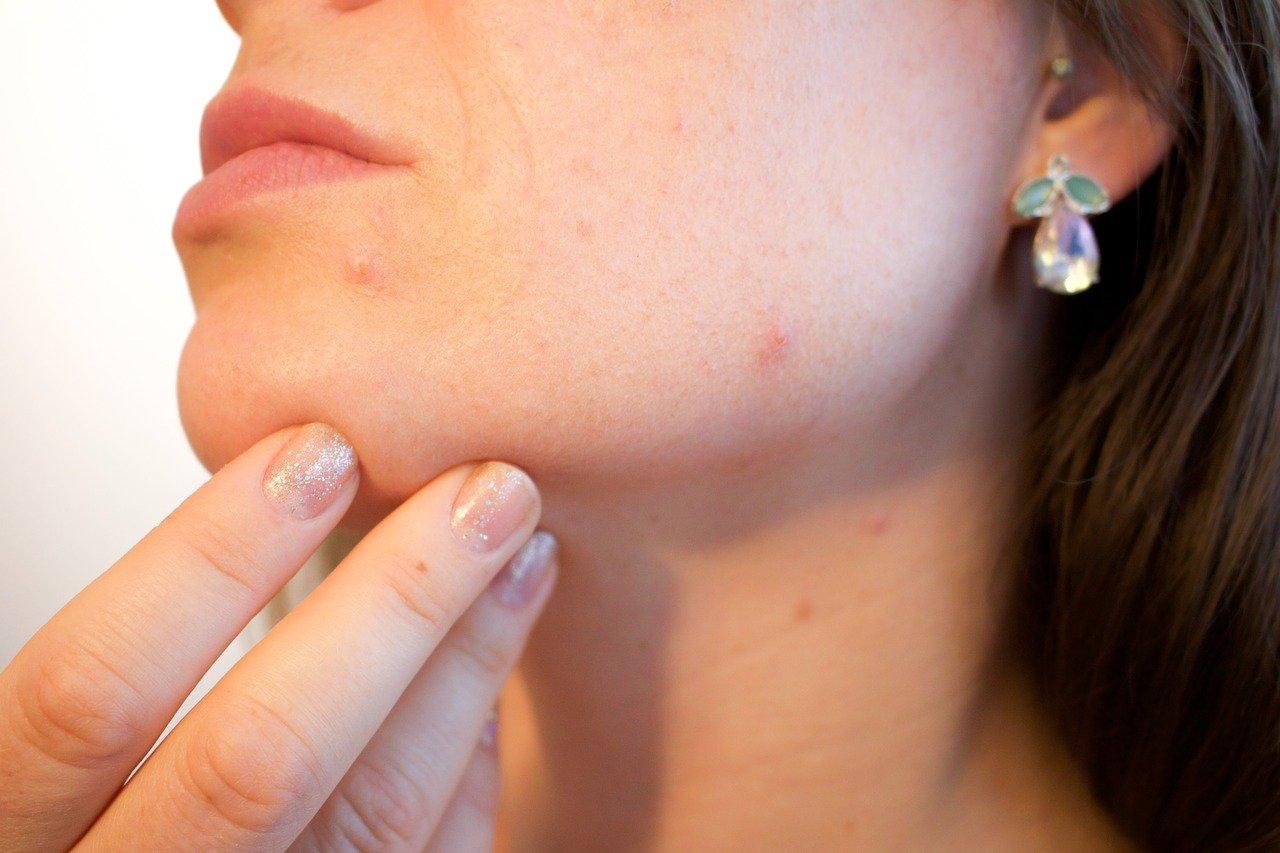 skin blemishes