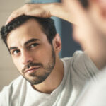 5 Early Signs of Balding and What You Can Do About It